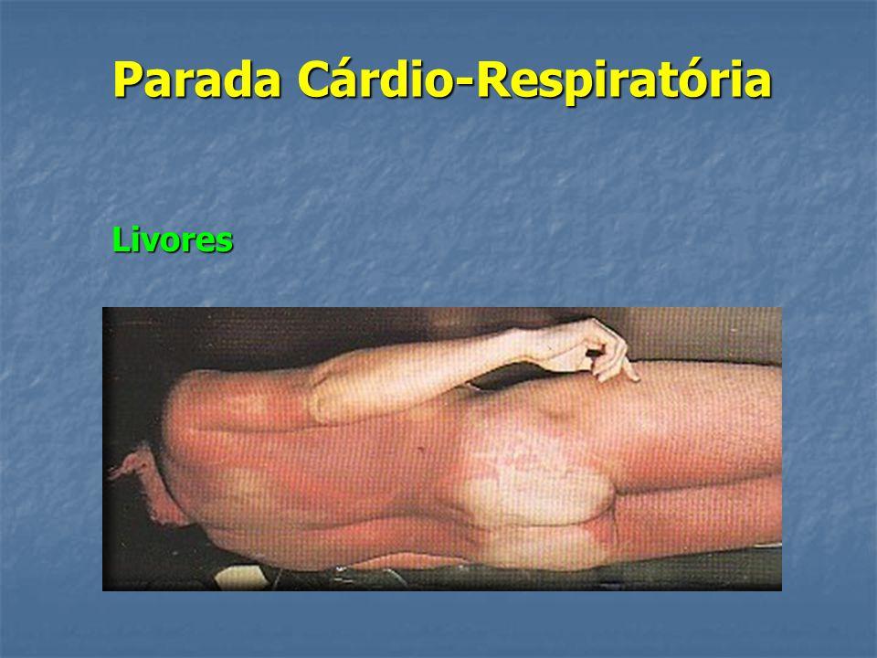 Parada Cárdio-Respiratória Rigidez cadavérica