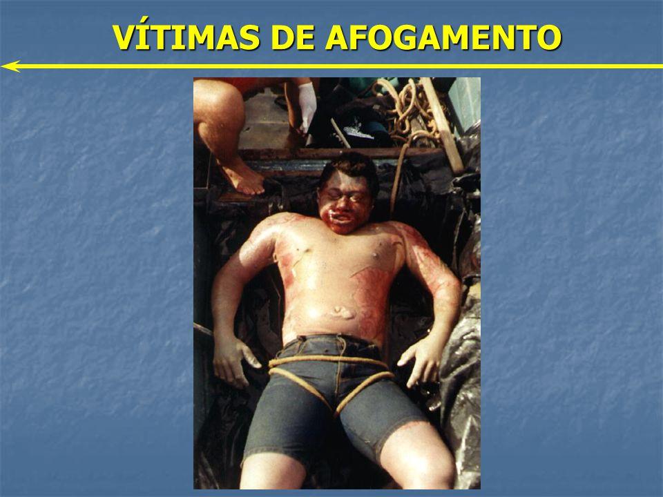 VÍTIMAS DE AFOGAMENTO