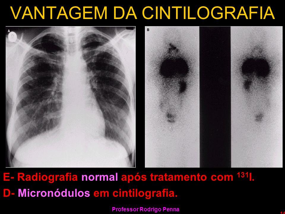 Professor Rodrigo Penna 16 VANTAGEM DA CINTILOGRAFIA E- Radiografia normal após tratamento com 131 I. D- Micronódulos em cintilografia.