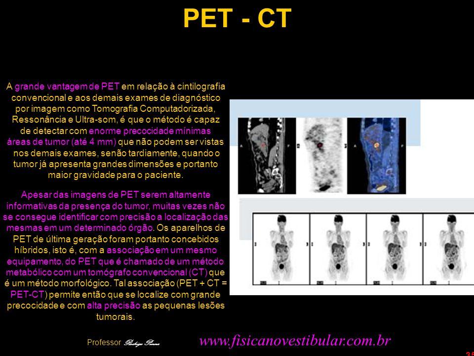 35 PET - CT A grande vantagem de PET em relação à cintilografia convencional e aos demais exames de diagnóstico por imagem como Tomografia Computadori