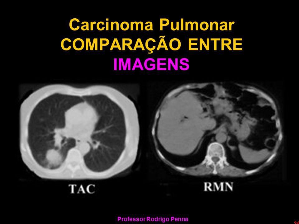 Professor Rodrigo Penna 36 Carcinoma Pulmonar COMPARAÇÃO ENTRE IMAGENS