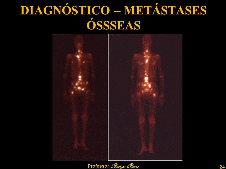24 Professor Rodrigo Penna DIAGNÓSTICO – METÁSTASES ÓSSSEAS