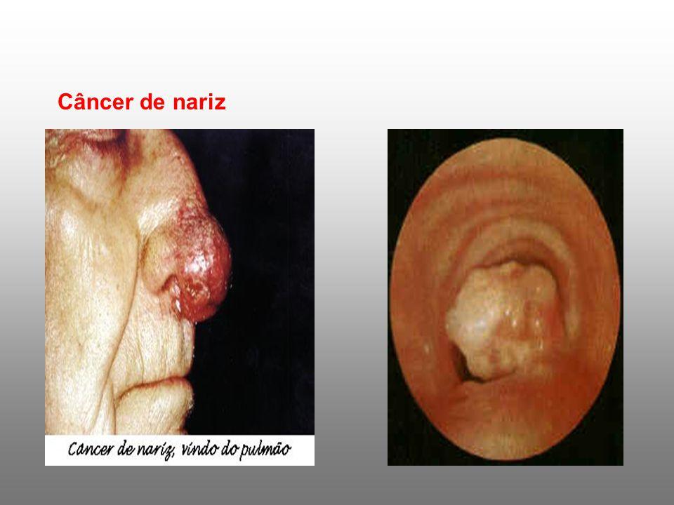 Câncer de garganta