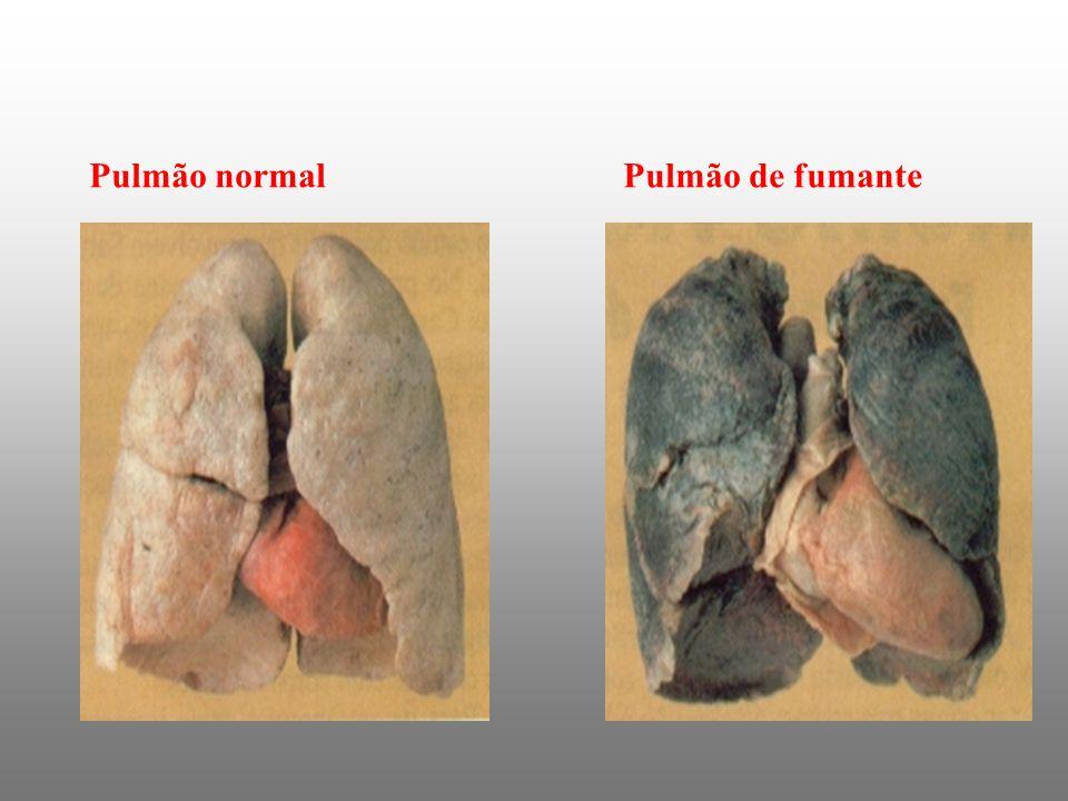 Pulmão normalPulmão de fumante