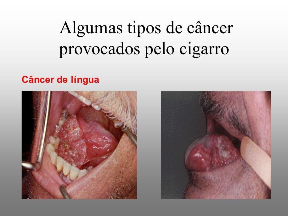 Algumas tipos de câncer provocados pelo cigarro Câncer de língua