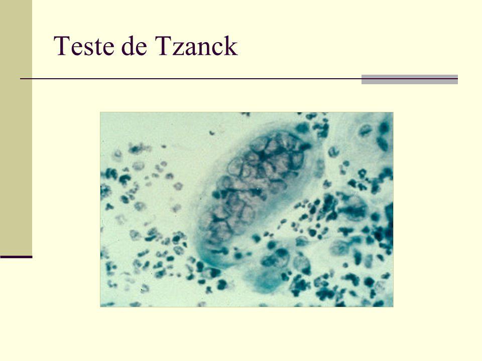Teste de Tzanck