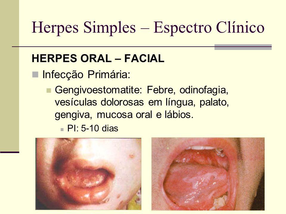 Herpes Simples – Tratamento Infecção Primária: 7 dias Aciclovir VO: 200mg 5xd ou 400mg 3xd Valaciclovir VO: 1g 12/12h Famciclovir VO: 250mg 8/8h Infecção Recorrente: 5 dias Iniciada nos pródromos Usar metade das doses se Vala/Famciclovir Casos graves, Imunossuprimidos: 7-14 dias Aciclovir EV: 5-10mg/kg 8/8h Casos Recidivantes (>5 episódios/ano): Aciclovir 400mg 12/12h (até 6 anos)