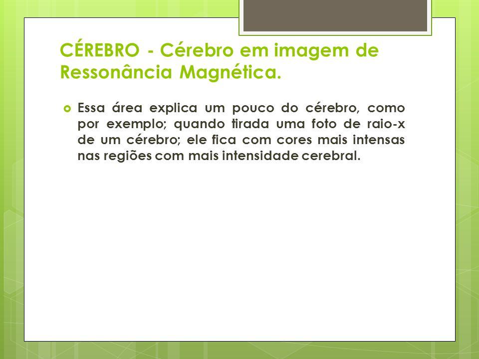 CÉREBRO - Cérebro em imagem de Ressonância Magnética. Essa área explica um pouco do cérebro, como por exemplo; quando tirada uma foto de raio-x de um