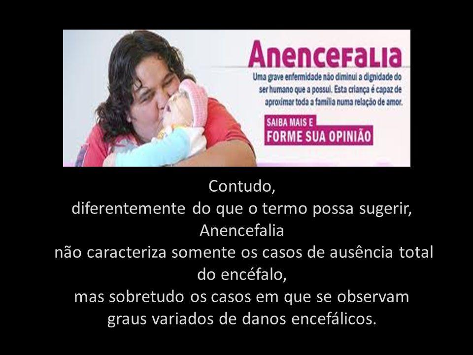A anencefalia consiste em uma malforma ç ão rara do tubo neural caracterizada pela ausência parcial do enc é falo e da calota craniana, proveniente de