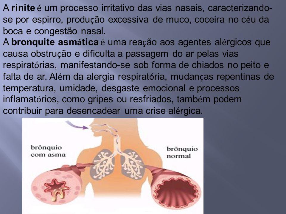 A rinite é um processo irritativo das vias nasais, caracterizando- se por espirro, produ ç ão excessiva de muco, coceira no c é u da boca e congestão