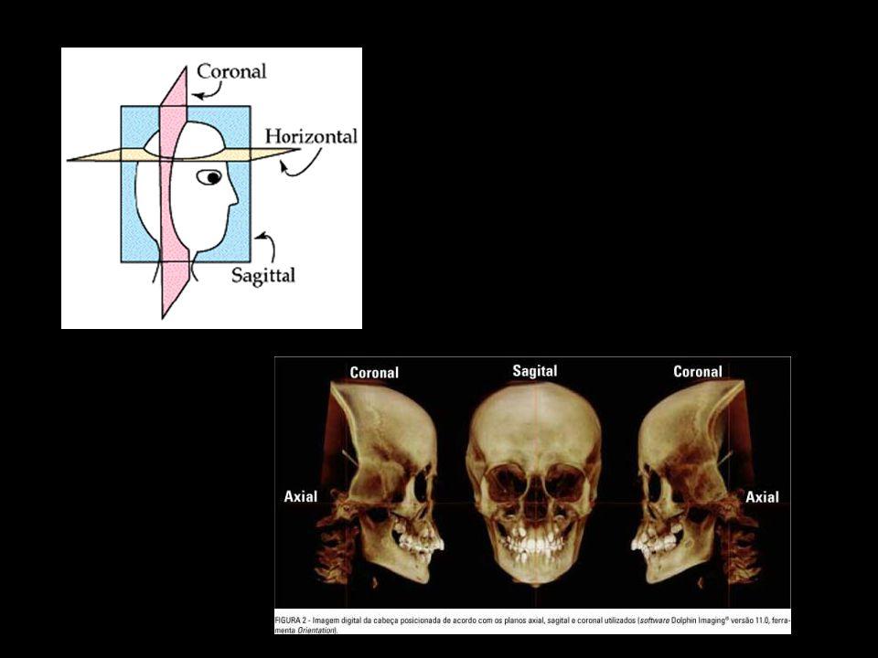 Possuímos dois hemisférios cerebrais, direito e esquerdo.