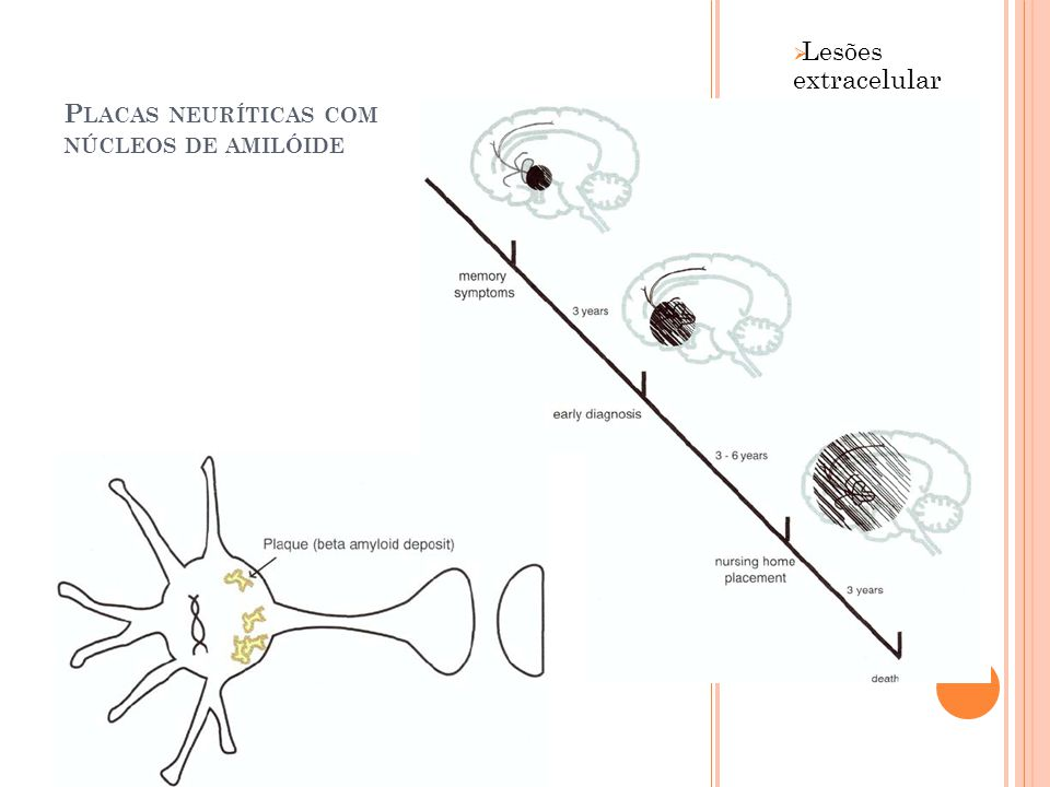 P LACAS NEURÍTICAS COM NÚCLEOS DE AMILÓIDE Lesões extracelular es Seu número está fortemente relacionado à função cognitiva Muitas são formadas progressiva mente nos neurônios colinérgico do núcleo basal de Meynert.