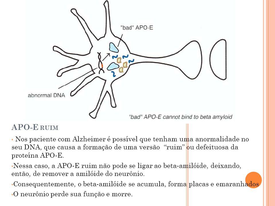 APO-E RUIM Nos paciente com Alzheimer é possível que tenham uma anormalidade no seu DNA, que causa a formação de uma versão ruim ou defeituosa da proteína APO-E.