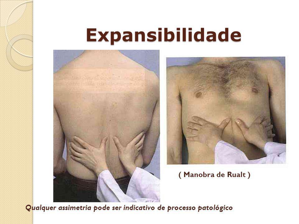 Expansibilidade ( Manobra de Rualt ) Qualquer assimetria pode ser indicativo de processo patológico
