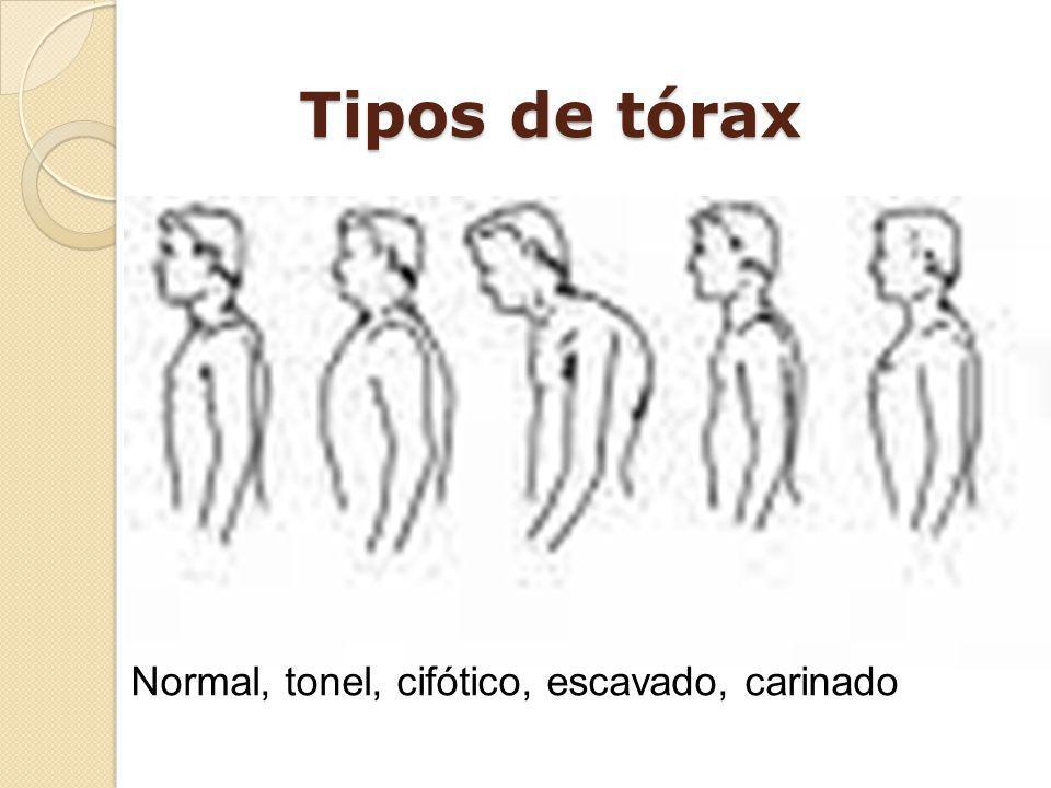 Tipos de tórax Normal, tonel, cifótico, escavado, carinado