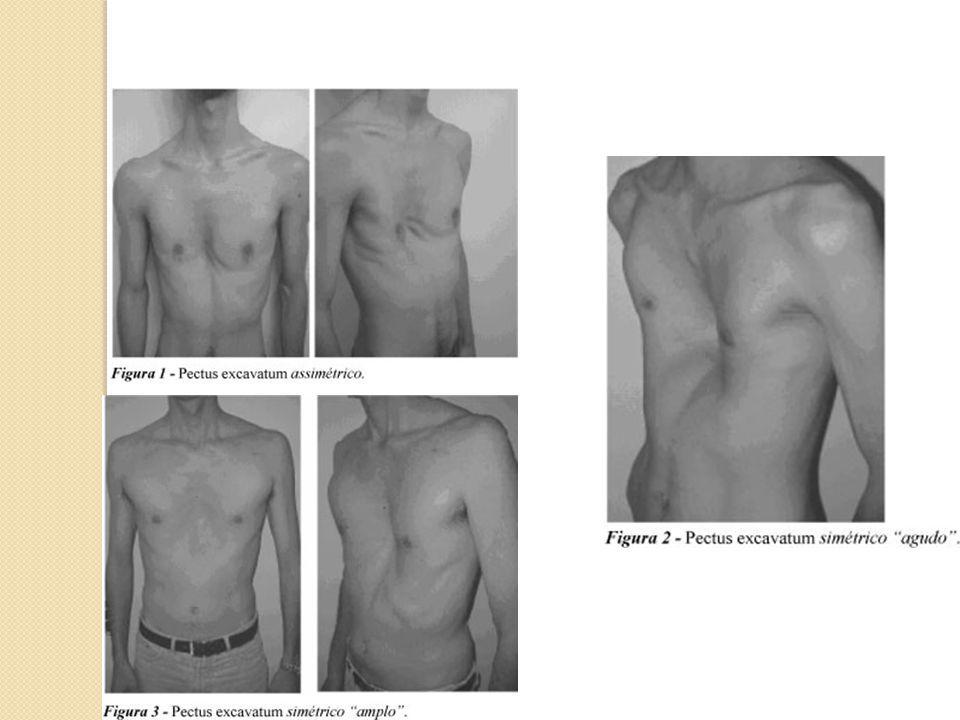 Inspeção Dinâmica do Tórax Tipo Respiratório Ritmo Respiratório Freqüência da respiração Amplitude dos movimentos respiratórios Presença ou não de tiragem Expansibilidade dos pulmões