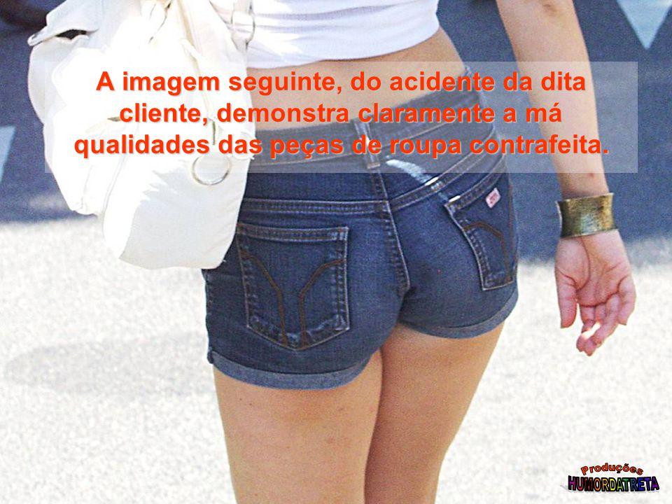 A imagem seguinte, do acidente da dita cliente, demonstra claramente a má qualidades das peças de roupa contrafeita.