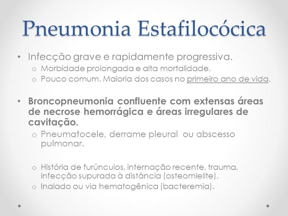 Pneumonia Estafilocócica Infecção grave e rapidamente progressiva. o Morbidade prolongada e alta mortalidade. o Pouco comum. Maioria dos casos no prim