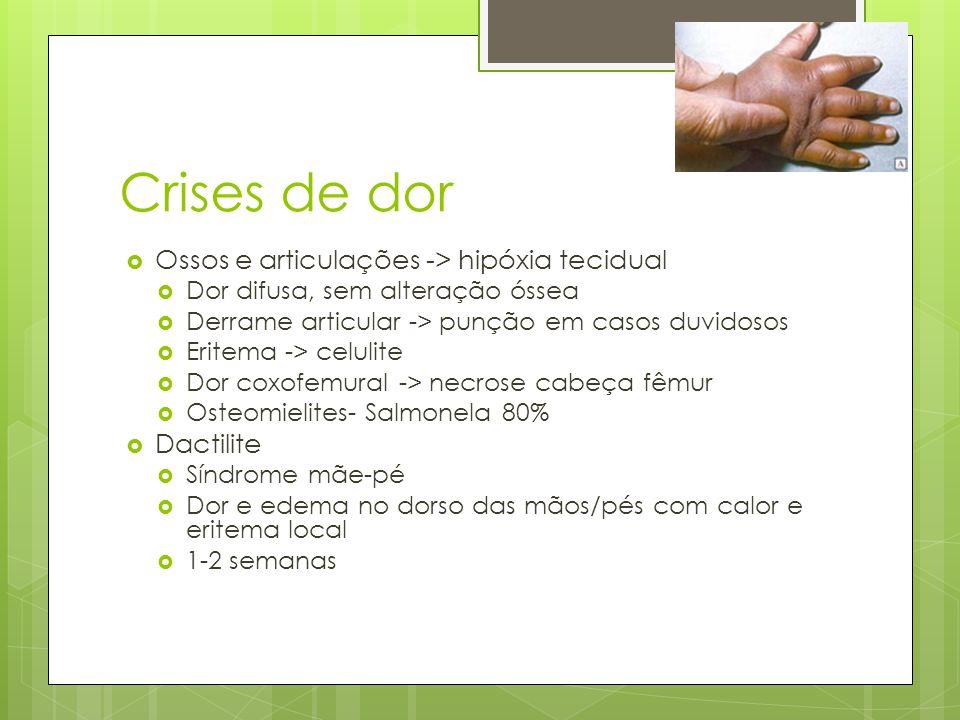 Crises de dor Ossos e articulações -> hipóxia tecidual Dor difusa, sem alteração óssea Derrame articular -> punção em casos duvidosos Eritema -> celul