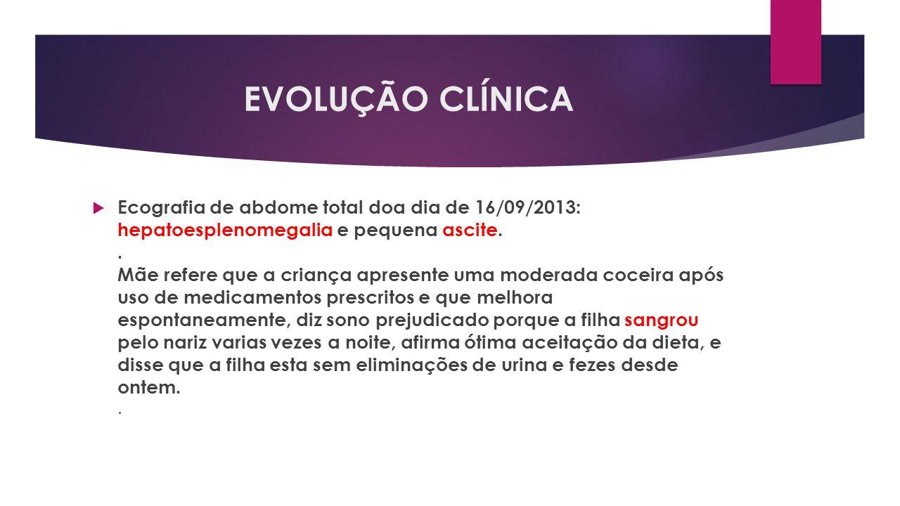 EVOLUÇÃO CLÍNICA Ecografia de abdome total doa dia de 16/09/2013: hepatoesplenomegalia e pequena ascite.. Mãe refere que a criança apresente uma moder
