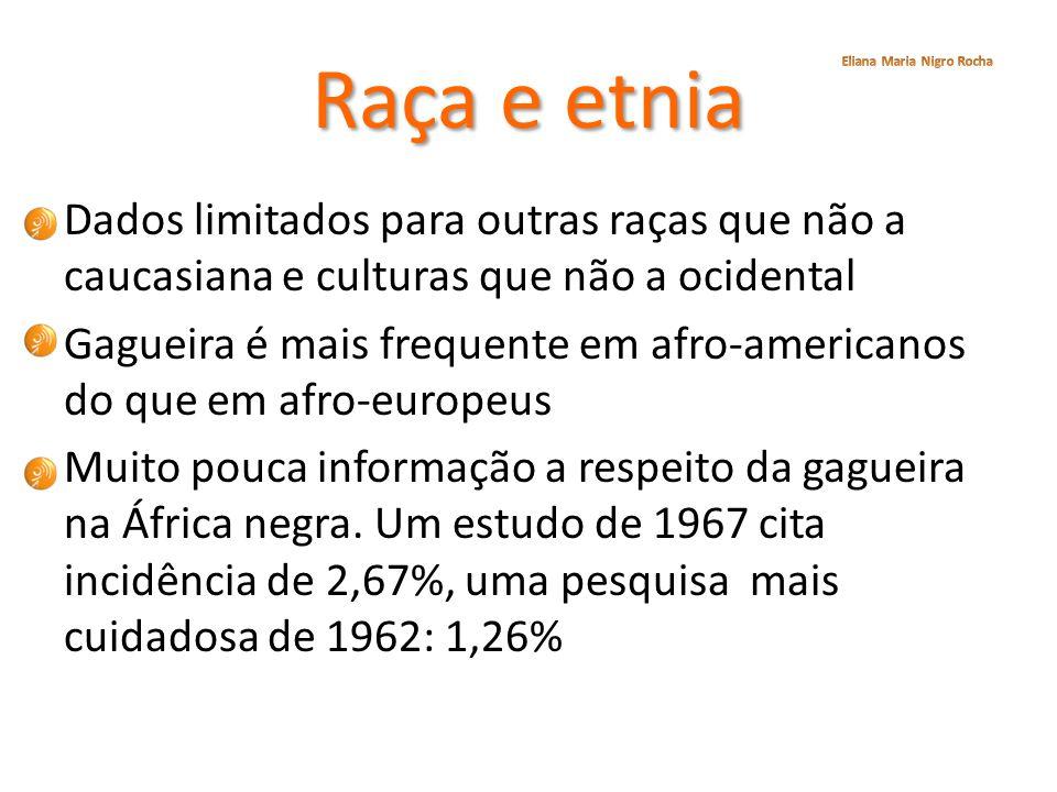 Raça e etnia Dados limitados para outras raças que não a caucasiana e culturas que não a ocidental Gagueira é mais frequente em afro-americanos do que