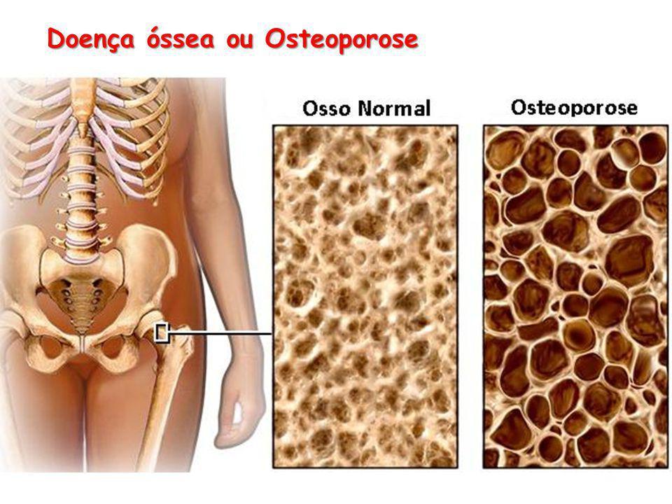 Doença óssea ou Osteoporose