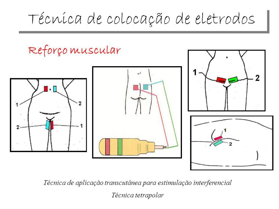 Técnica de colocação de eletrodos Reforço muscular Técnica de aplicação transcutânea para estimulação interferencial Técnica tetrapolar