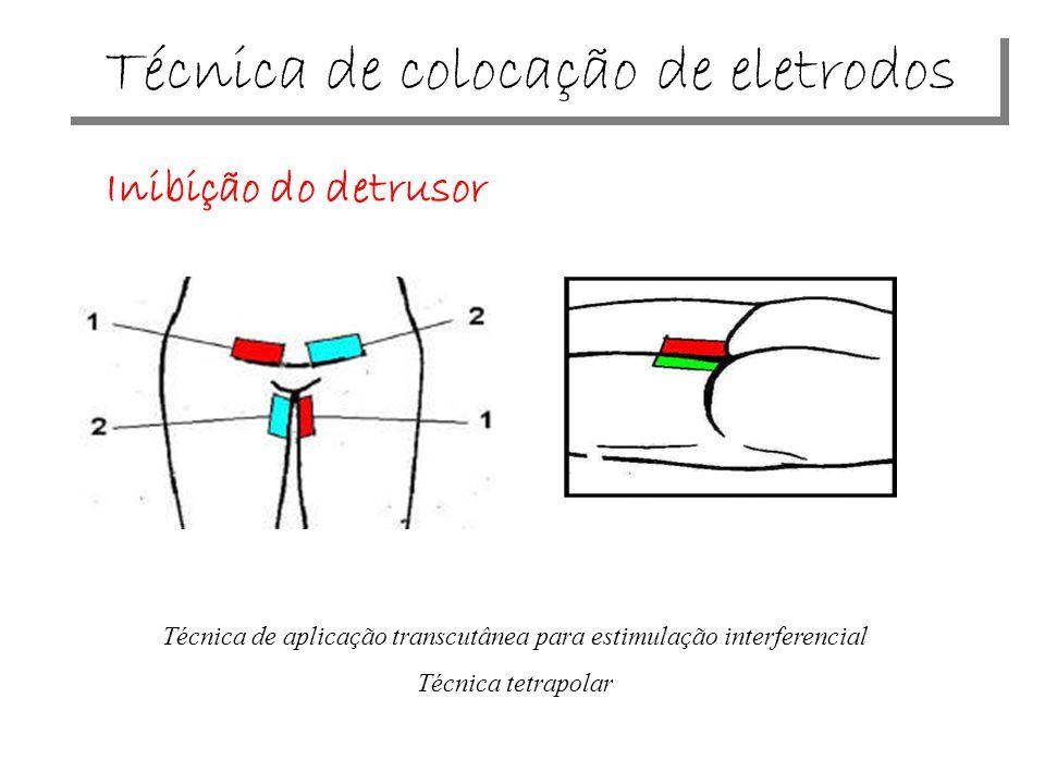 Técnica de colocação de eletrodos Inibição do detrusor Técnica de aplicação transcutânea para estimulação interferencial Técnica tetrapolar
