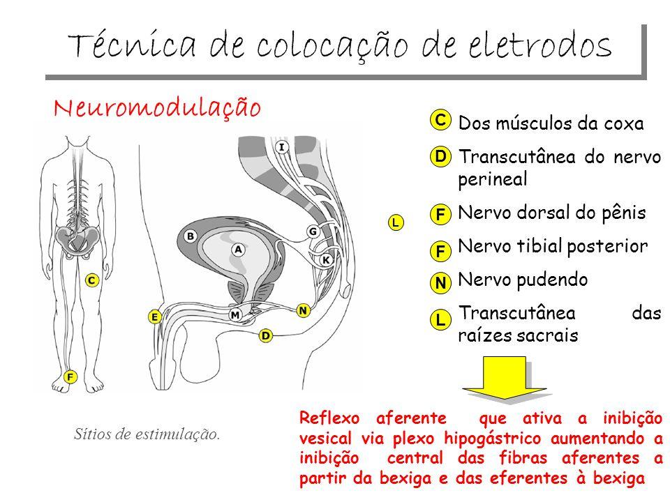 Sítios de estimulação. C Dos músculos da coxa Transcutânea do nervo perineal Nervo dorsal do pênis Nervo tibial posterior Nervo pudendo Transcutânea d