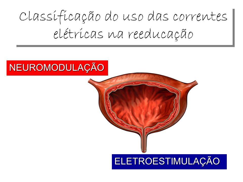 Classificação do uso das correntes elétricas na reeducação NEUROMODULAÇÃO ELETROESTIMULAÇÃO