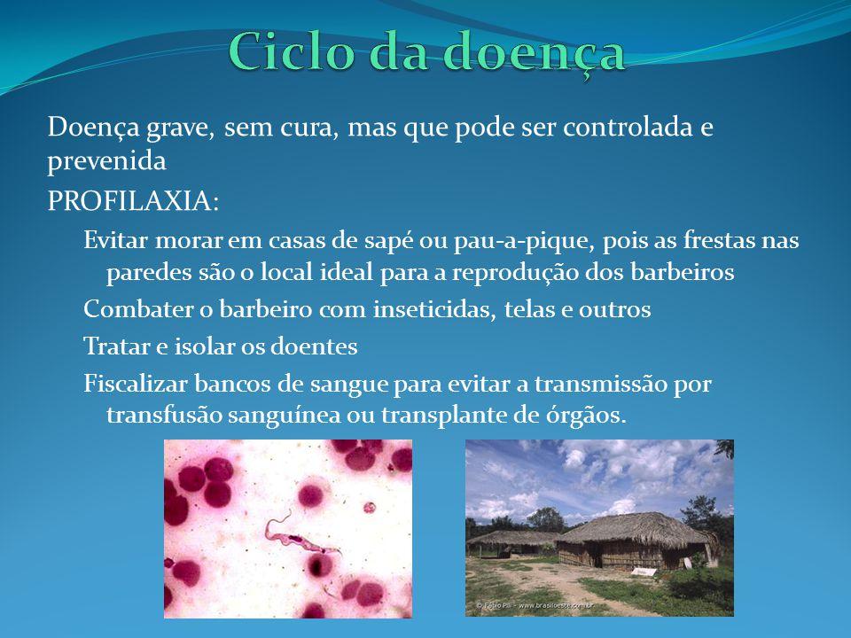 DOENÇA DO SONO Provocada pelo Trypanosoma brucei e transmitido pela picada da mosca Glossina palpalis ou tsé-tsé