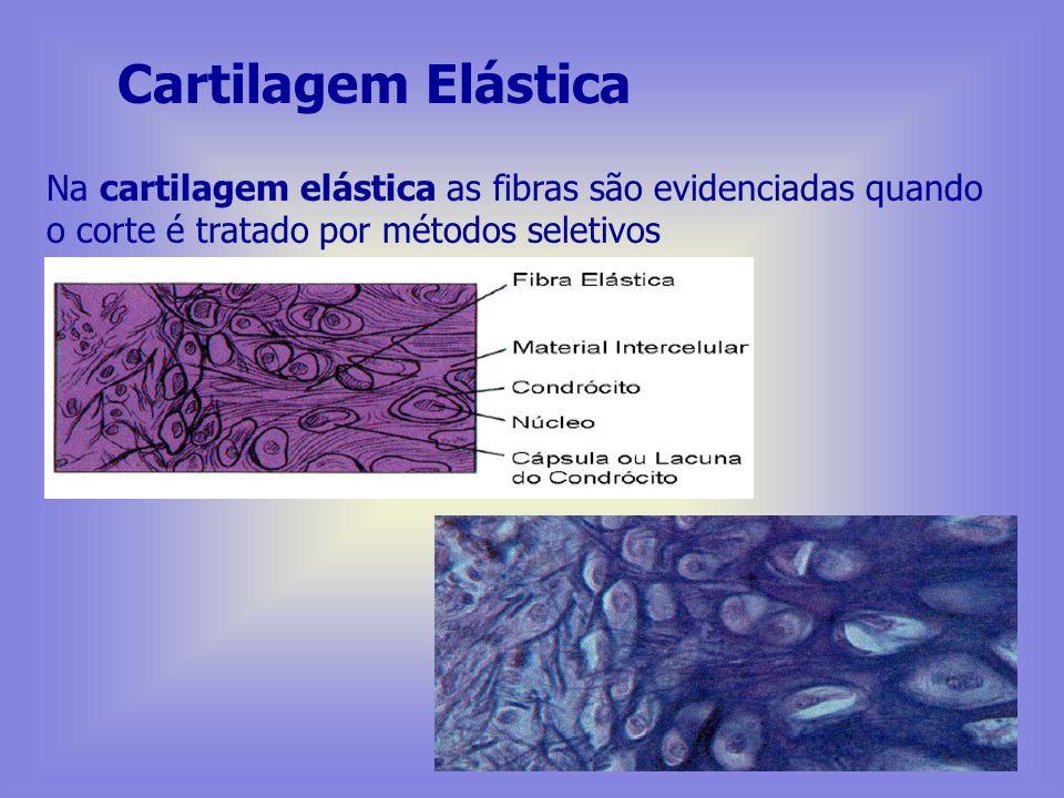 Cartilagem Fibrosa Na cartilagem fibrosa, os feixes colágenos aparecem claramente no corte corado pela H.E. identificando-se o tecido cartilaginoso de