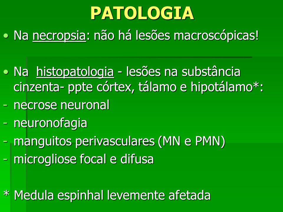 PATOLOGIA Na necropsia: não há lesões macroscópicas!Na necropsia: não há lesões macroscópicas! Na histopatologia - lesões na substância cinzenta- ppte