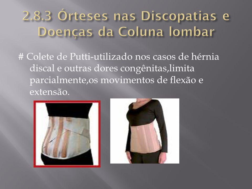 # Colete de Putti-utilizado nos casos de hérnia discal e outras dores congênitas,limita parcialmente,os movimentos de flexão e extensão.