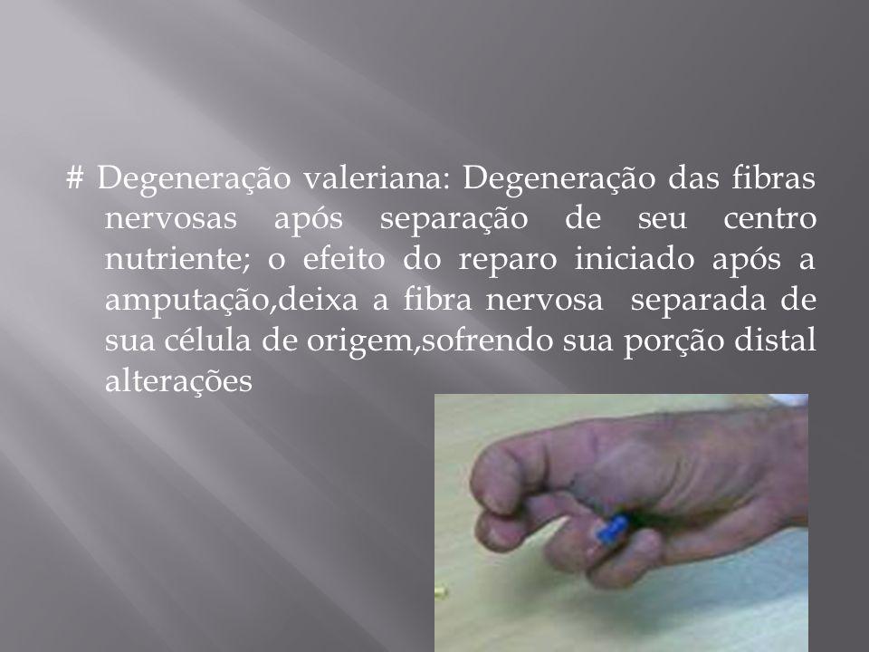 # Degeneração valeriana: Degeneração das fibras nervosas após separação de seu centro nutriente; o efeito do reparo iniciado após a amputação,deixa a