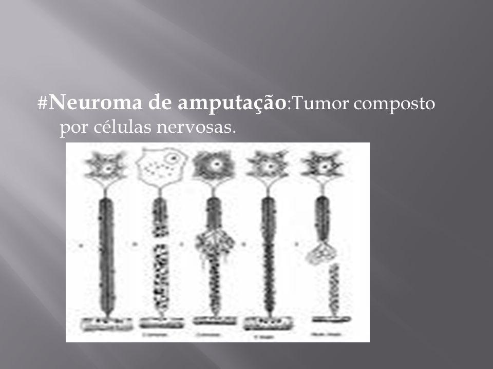 # Neuroma de amputação :Tumor composto por células nervosas.