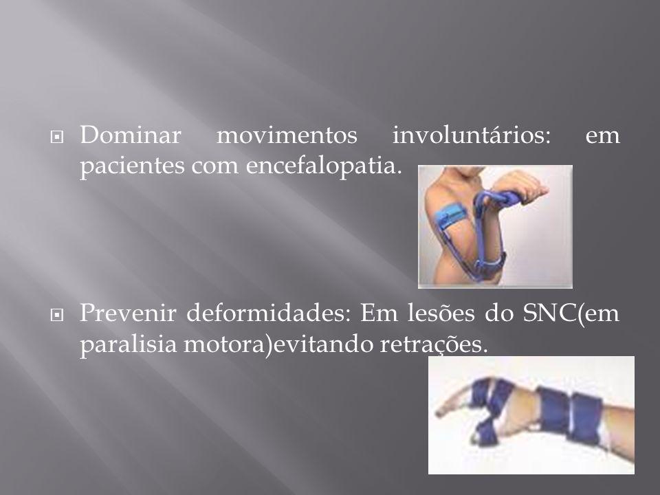 Dominar movimentos involuntários: em pacientes com encefalopatia. Prevenir deformidades: Em lesões do SNC(em paralisia motora)evitando retrações.