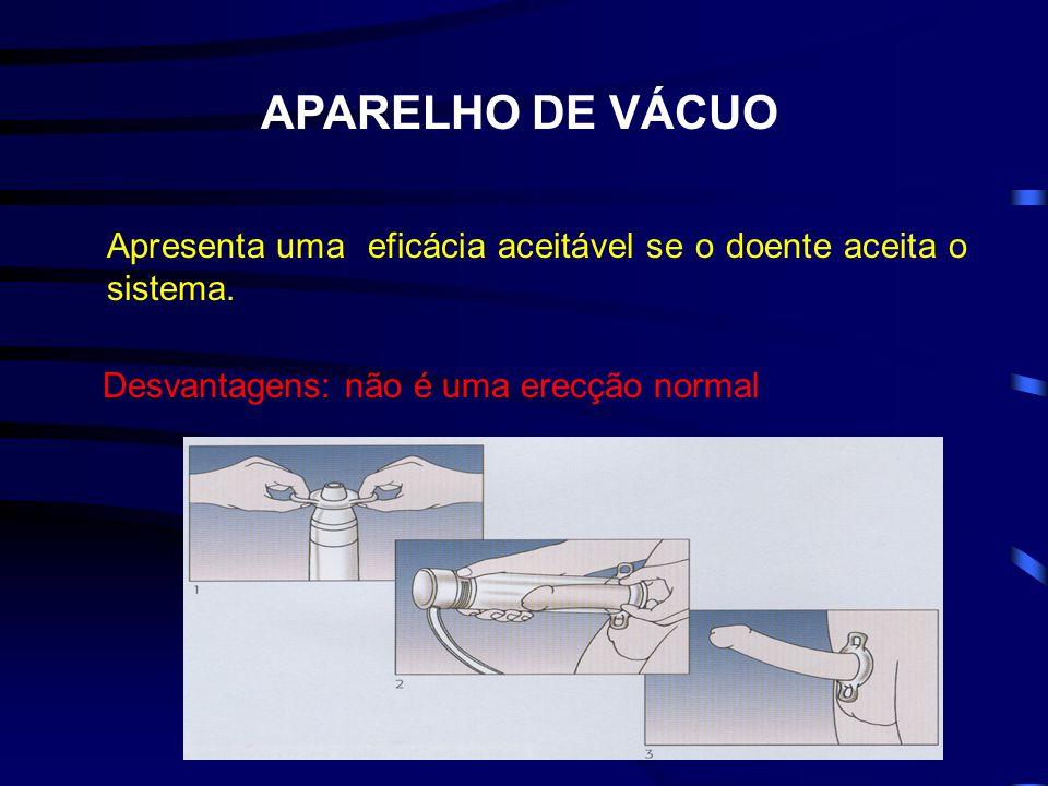 APARELHO DE VÁCUO Apresenta uma eficácia aceitável se o doente aceita o sistema. Desvantagens: não é uma erecção normal
