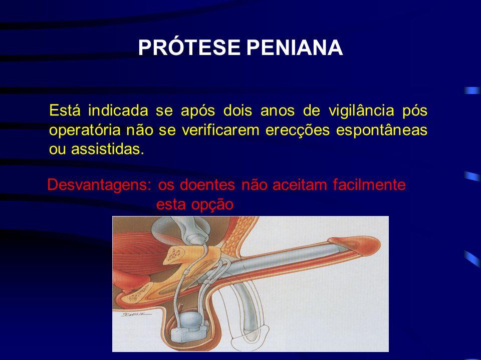 PRÓTESE PENIANA Está indicada se após dois anos de vigilância pós operatória não se verificarem erecções espontâneas ou assistidas. Desvantagens: os d