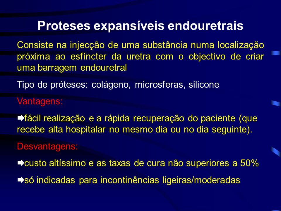 Proteses expansíveis endouretrais Consiste na injecção de uma substância numa localização próxima ao esfíncter da uretra com o objectivo de criar uma