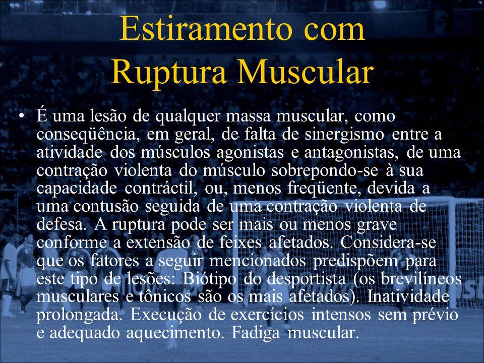 Estiramento com Ruptura Muscular É uma lesão de qualquer massa muscular, como conseqüência, em geral, de falta de sinergismo entre a atividade dos mús