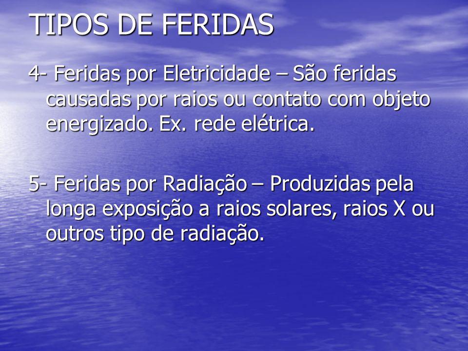 TIPOS DE FERIDAS 4- Feridas por Eletricidade – São feridas causadas por raios ou contato com objeto energizado. Ex. rede elétrica. 5- Feridas por Radi