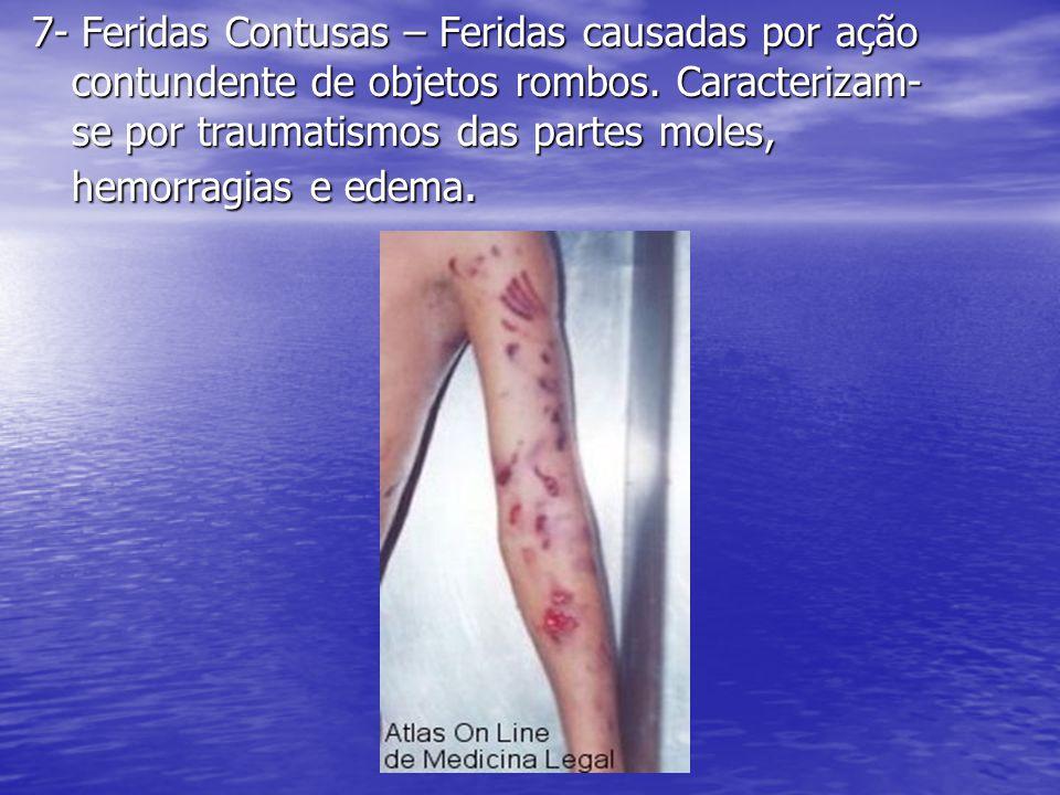 7- Feridas Contusas – Feridas causadas por ação contundente de objetos rombos. Caracterizam- se por traumatismos das partes moles, hemorragias e edema
