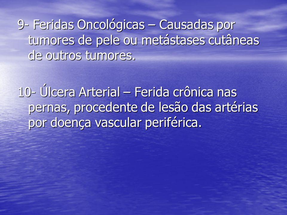 9- Feridas Oncológicas – Causadas por tumores de pele ou metástases cutâneas de outros tumores. 10- Úlcera Arterial – Ferida crônica nas pernas, proce