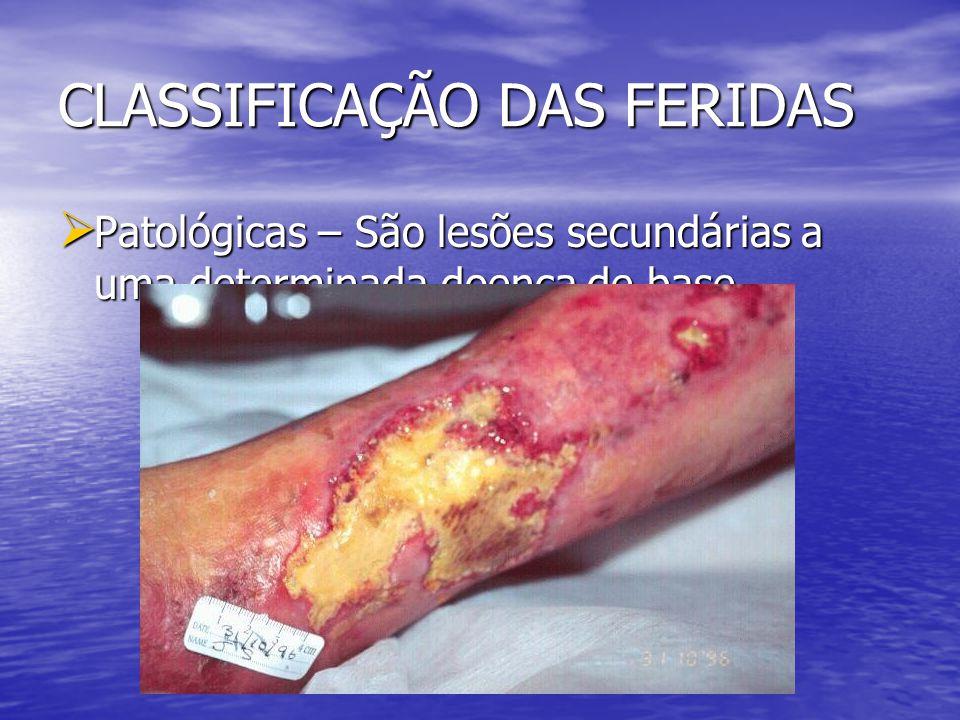 CLASSIFICAÇÃO DAS FERIDAS Iatrogênicas – São feridas resultantes de procedimentos ou tratamentos.