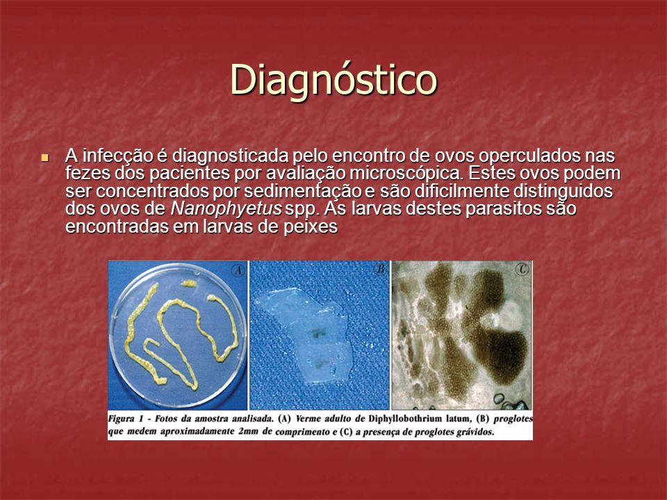 Diagnóstico A infecção é diagnosticada pelo encontro de ovos operculados nas fezes dos pacientes por avaliação microscópica. Estes ovos podem ser conc