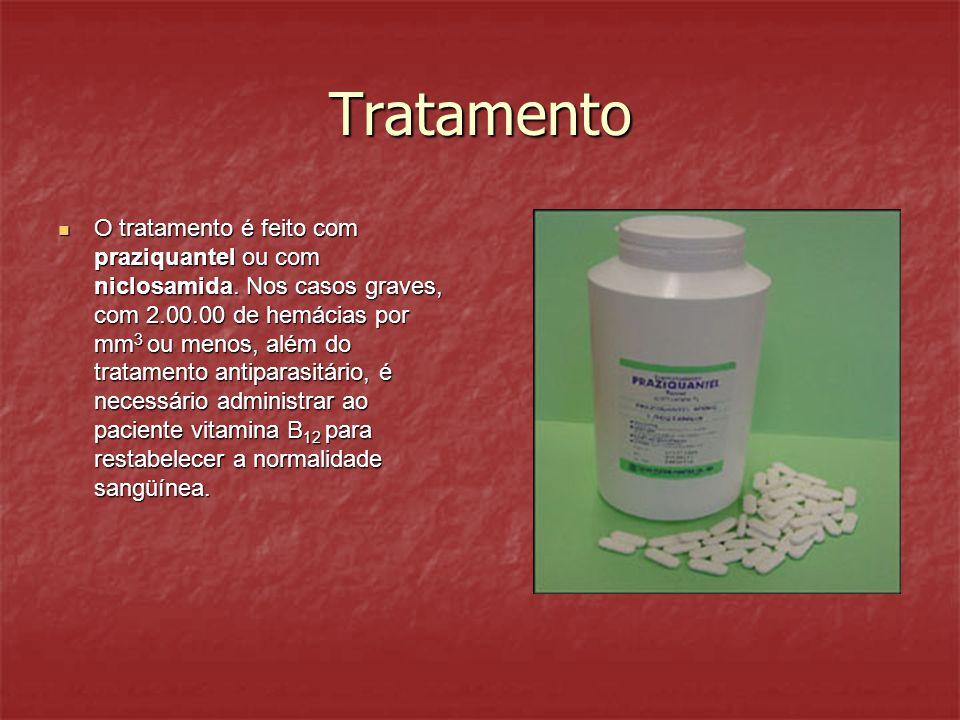 Tratamento O tratamento é feito com praziquantel ou com niclosamida. Nos casos graves, com 2.00.00 de hemácias por mm 3 ou menos, além do tratamento a