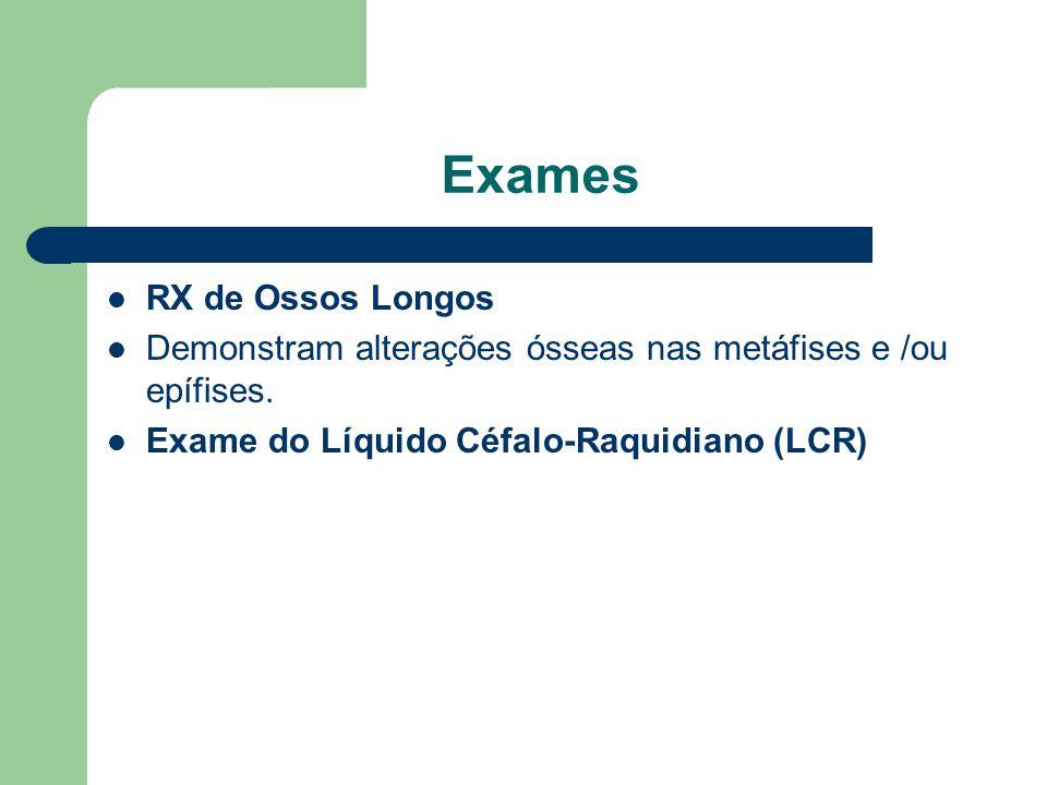 Exames RX de Ossos Longos Demonstram alterações ósseas nas metáfises e /ou epífises.