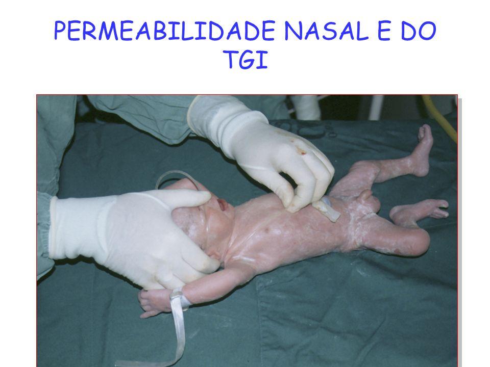PERMEABILIDADE NASAL E DO TGI