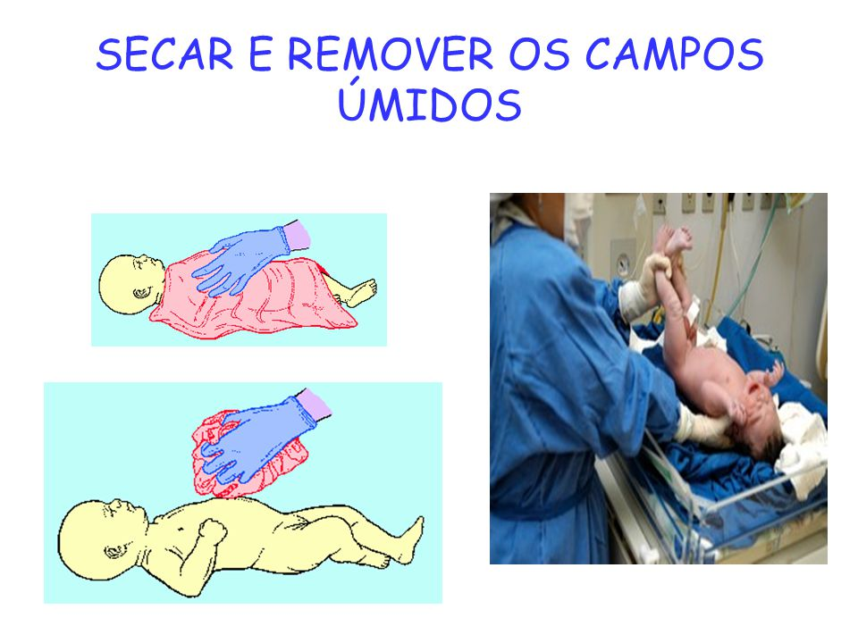 SECAR E REMOVER OS CAMPOS ÚMIDOS